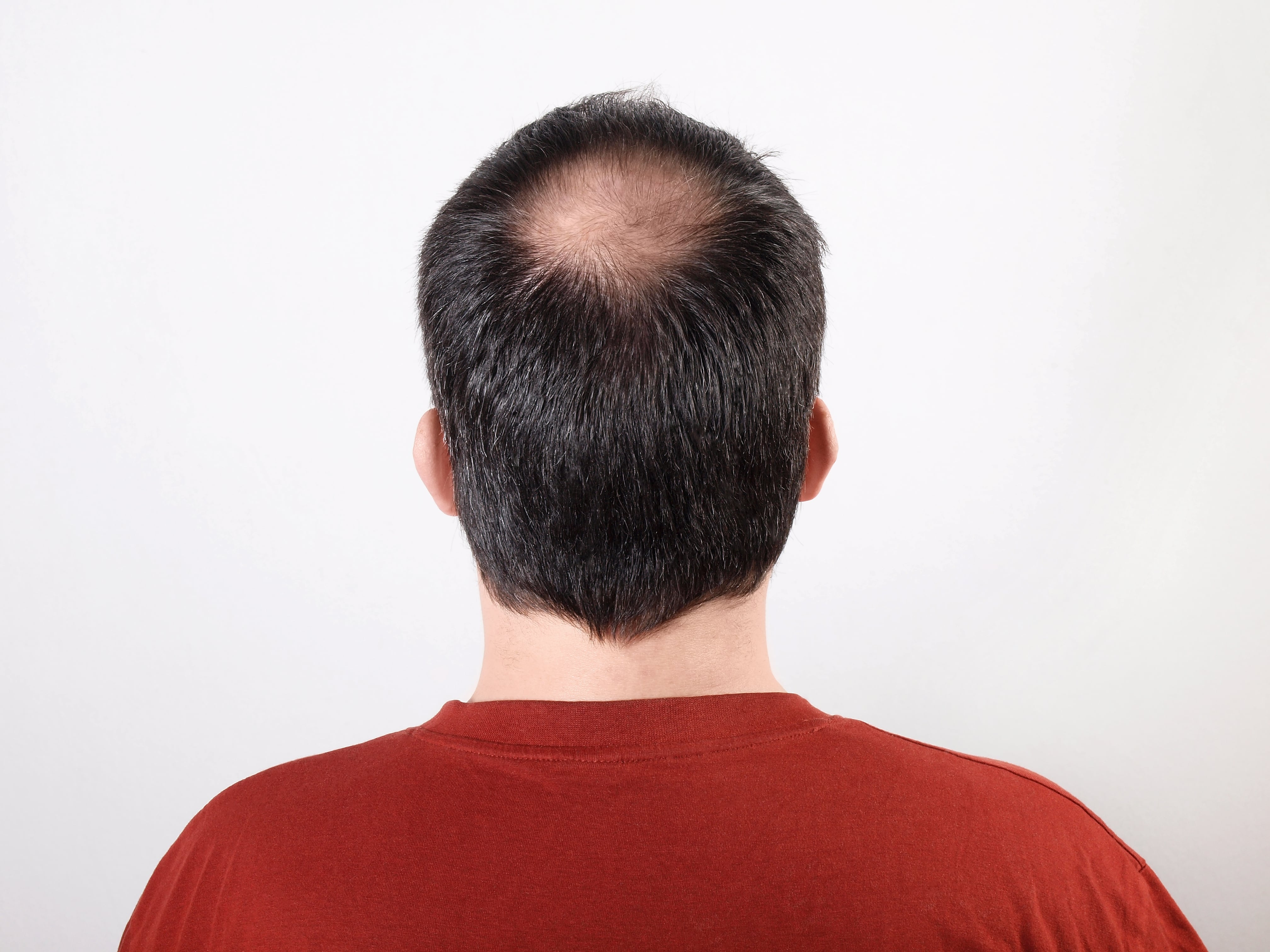 Everything You Need to Know about Hair Transplantation