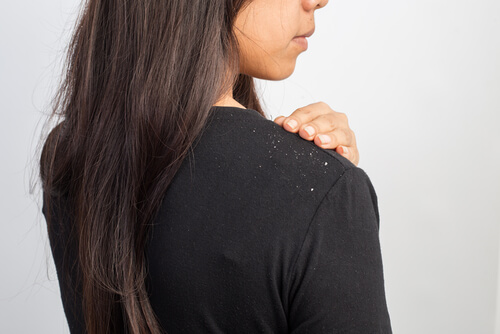 Myths About Dandruff