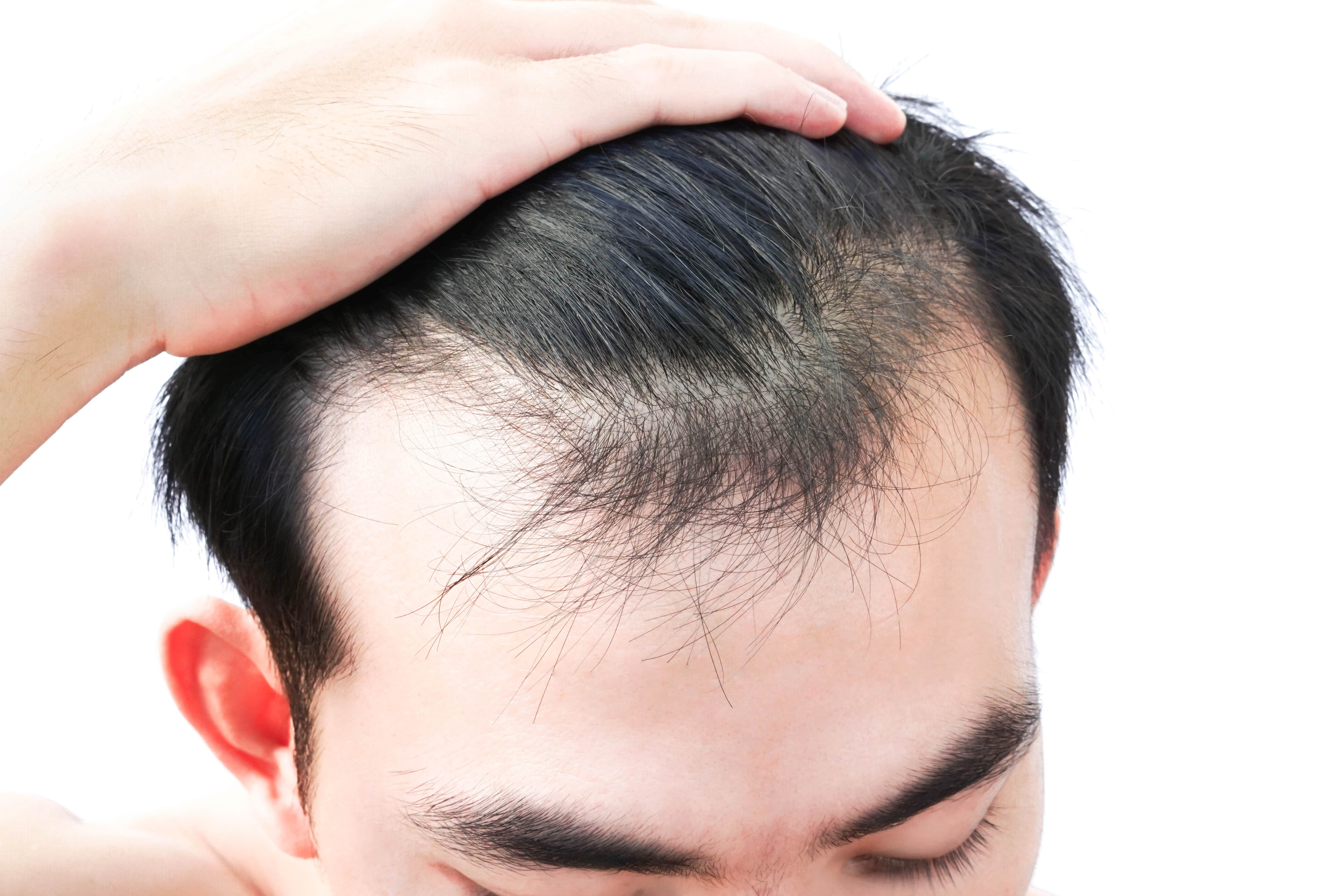 Does Hair Fall Out After Hair Transplant