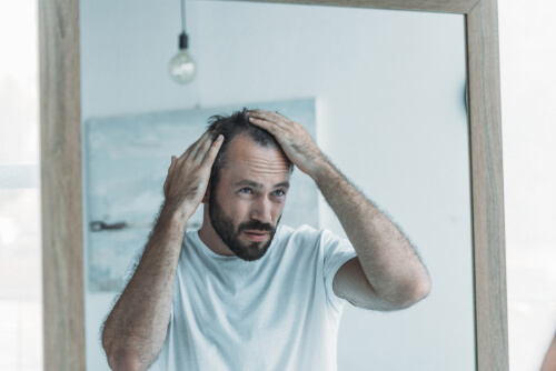 Can Hereditary Hair Loss be Prevented in Men