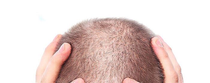 What Are the Types of Hair Loss